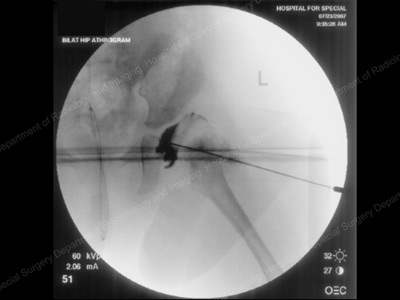 Arthrogram image of dislocated hip in the operating room. Pediatric Hip Dysplasia