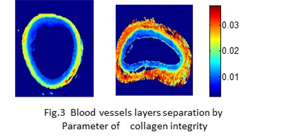 Image - Blood vessels layers separation