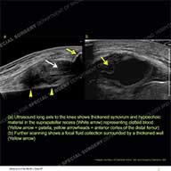 Ultrasound of the Month Case 57