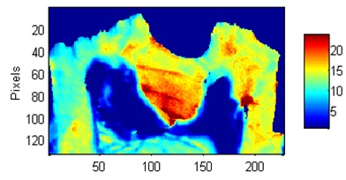 Image - mineral/matrix spatial distribution - mouse tooth