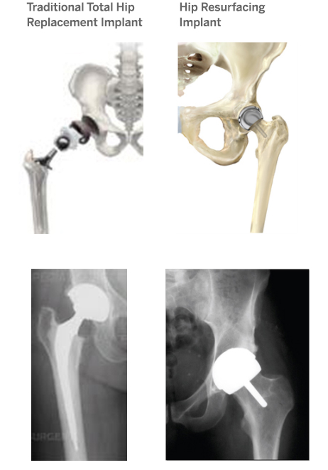 Understanding Implants in Knee and Hip Replacement
