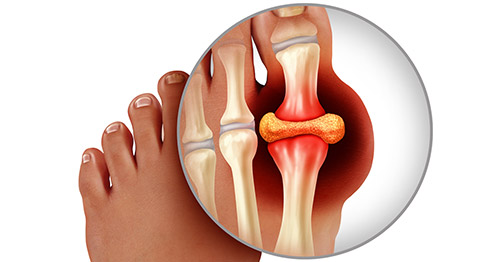 Ilustrasi yang menunjukkan gout di jari kaki di sekitar struktur rangka.