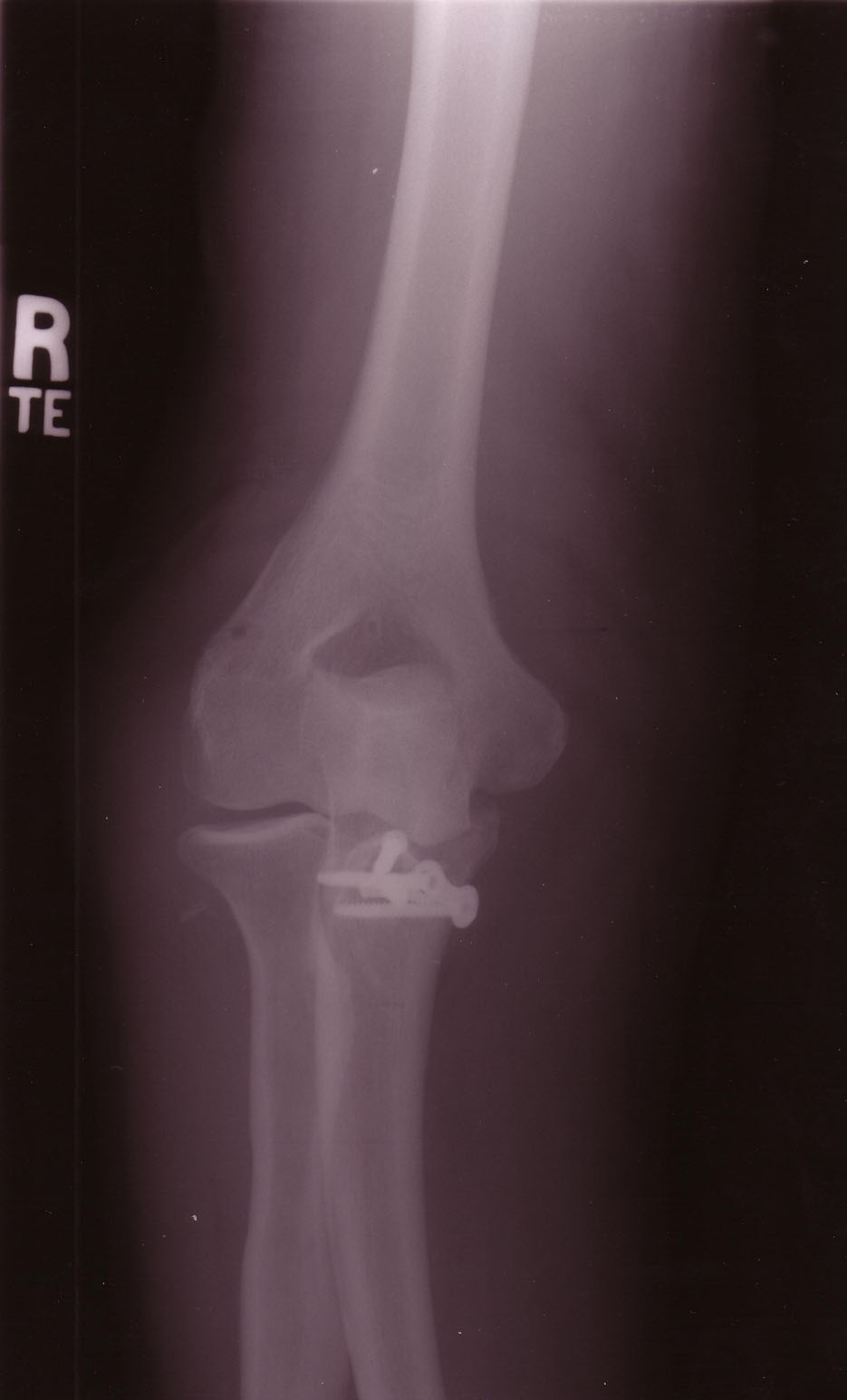 Failed internal fixation (plate and screws) of comminuted fracture of the coronoid process