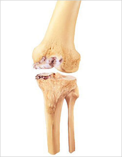 Medial compartment osteoarthritis prior to partial knee replacement