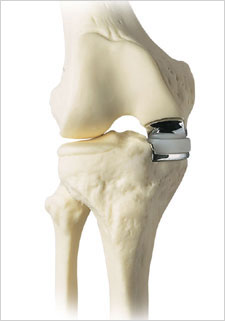 Partial Knee Replacement Unicondylar Knee Replacement