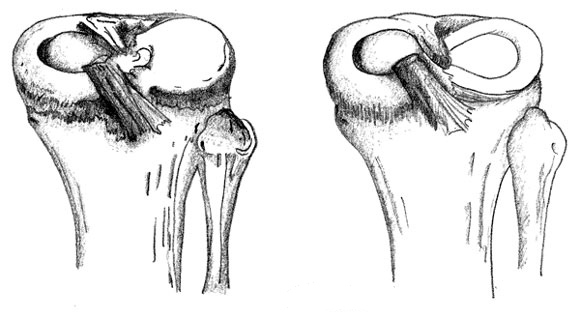Diagram of a discoid meniscus and a normal meniscus