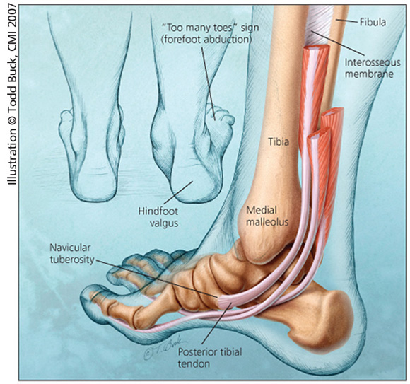 Posterior Tibial Tendon Insufficiency  Adult Acquired