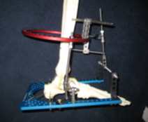 an actual external fixator frame
