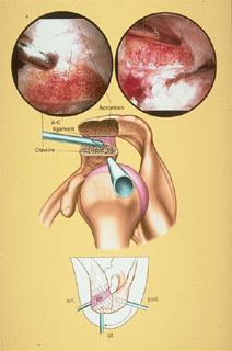 Graphic showing a bursectomy