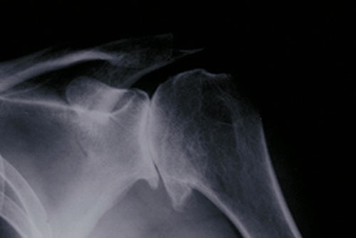 total shoulder replacement osteoarthritis