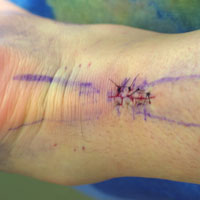 Photo of the patient's sutures post surgery