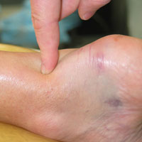 Close up photo of a finger pointing to the achilles tendon on a patient's foot