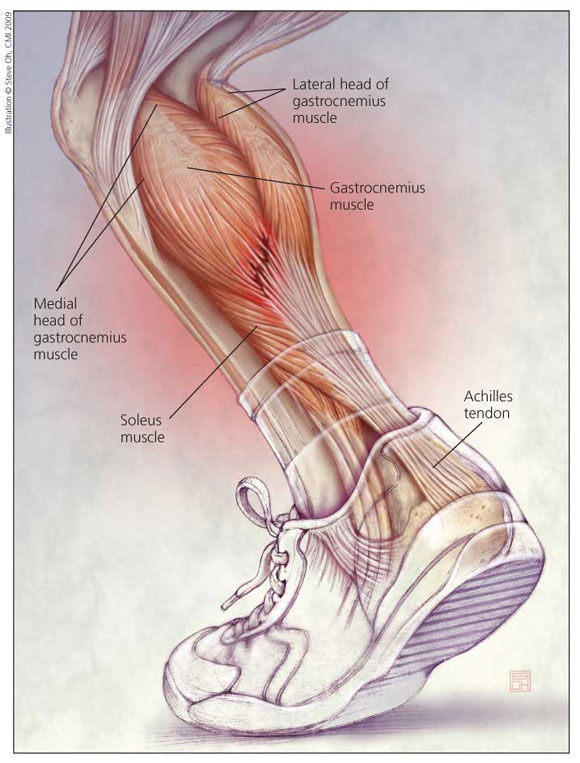 Chronic Achilles Tendon Problems An Overview