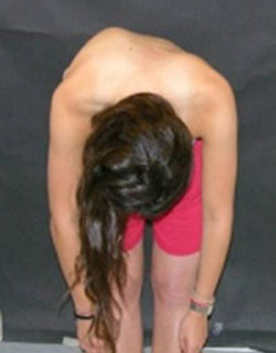 Photo of a patient doing Adams forward-bending test, revealing pronounced curvature of the spine.