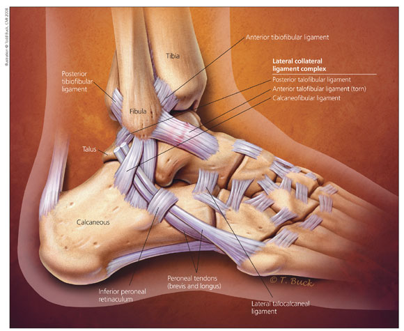 Illustration of the anatomy of the ankle for an article about High Ankle Sprains.