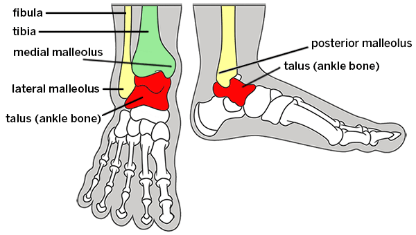 Graphic showing bones of the ankle with labeling of the fibula, tibia, medial malleolus, lateral malleolus and talus (ankle bone).
