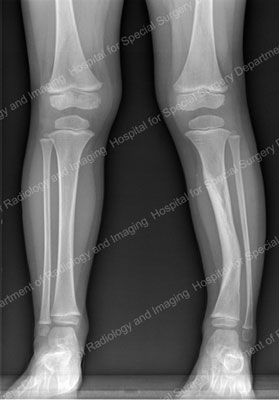 X-ray of an anterolateral bow in the tibia of a young patient