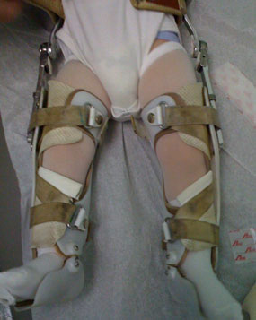 Photo of a child with Blount's Disease in a brace