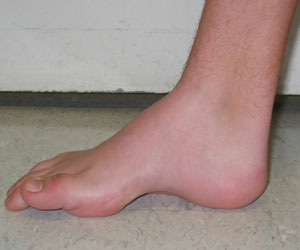 Cavovarus foot - medial to lateral view of a right cavovarus foot - Note the Pathognomonic High Arch from an article about Pediatric Foot Deformities.