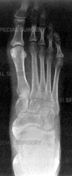 X-ray of a healthy foot