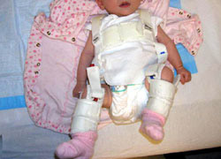 Pavlik Harness used for children with hip dysplasia up to 6 months old.