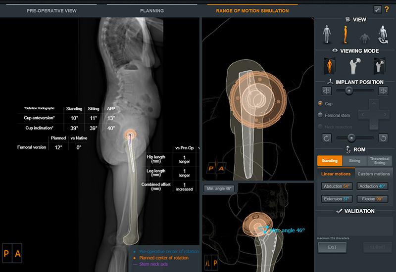 Photo showing EOS imaging preoperative patient view with 3D renderings and measurement of implant placement.