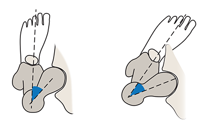 Illustration of a femoral anteversion