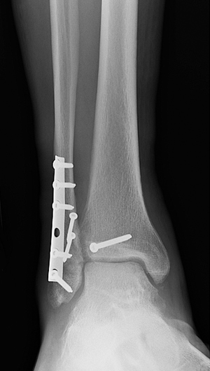 X-ray image showing front view of fixation of the fibula and posterior malleolus with restoration of the joint congruity.
