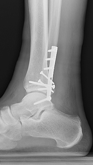 X-ray image showing side view of fixation of the fibula and posterior malleolus with restoration of the joint congruity.