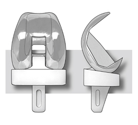 Illustration of the Insall-Burstein knee replacement prosthesis.