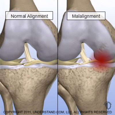 Image: Graphic showing malalignment of the knee.