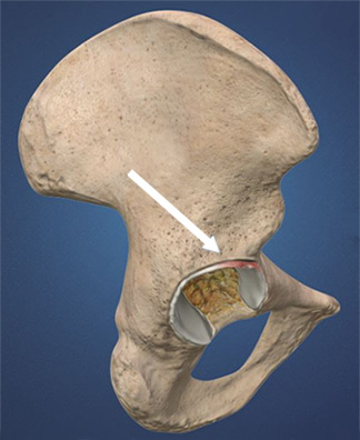 Image: An illustration of the hip showing a tear in the acetabular labrum.