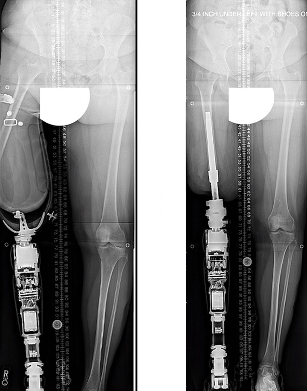 X-ray images: Before and after above-the-knee osseointegrated leg implant and prosthesis, with vastly improved alignment.