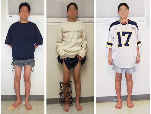 Images of a pediatric patient (1) before surgery with different lengh legs, (2) wearing an external fixator to lengthen the leg, and (3) after surgery, with equal length legs.