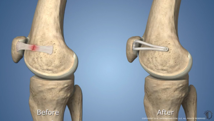 MPFL ligament before and after