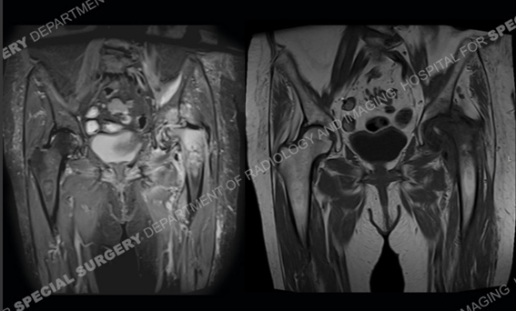 Image: MRI of the hips showing osteoarthritis and edema of the femoral head and acetabulum.