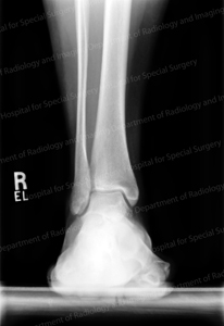 X-ray image of a normal ankle