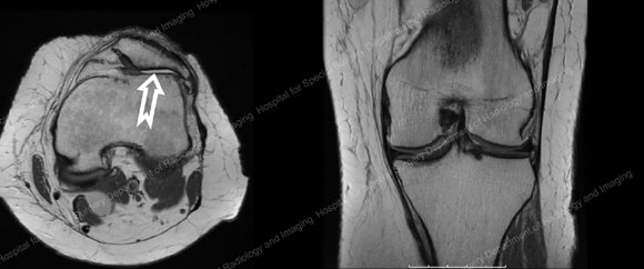 MRI images of a patient with severe arthritis in the patellofemoral compartment in the knee from an article about Arthritis in the Knee from Hospital for Special Surgery