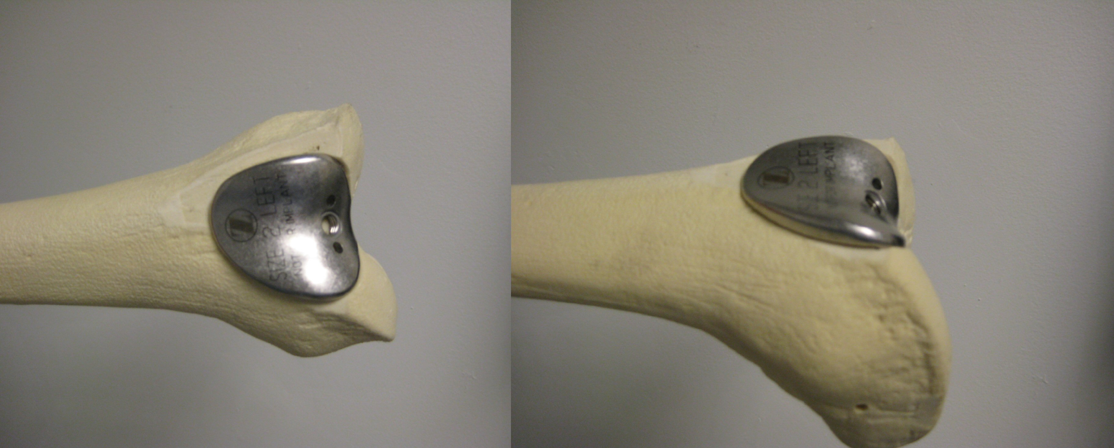 Patellofemoral Knee Replacement Implant
