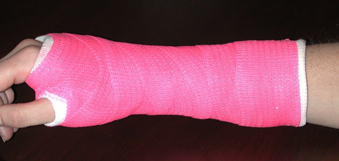 Avoiding Distal Radius Fracture Complications (Broken Wrist)