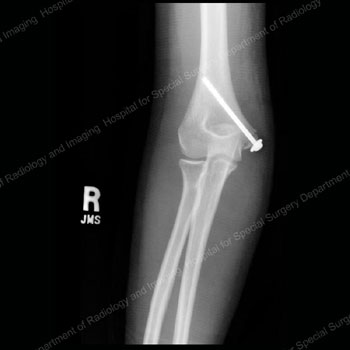 X-ray image showing anterior view of a medial epicondyle fracture with screw set in bone to secure bone fragment.