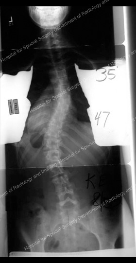 Front view resurgical X-ray for scoliosis requiring anterior approach.