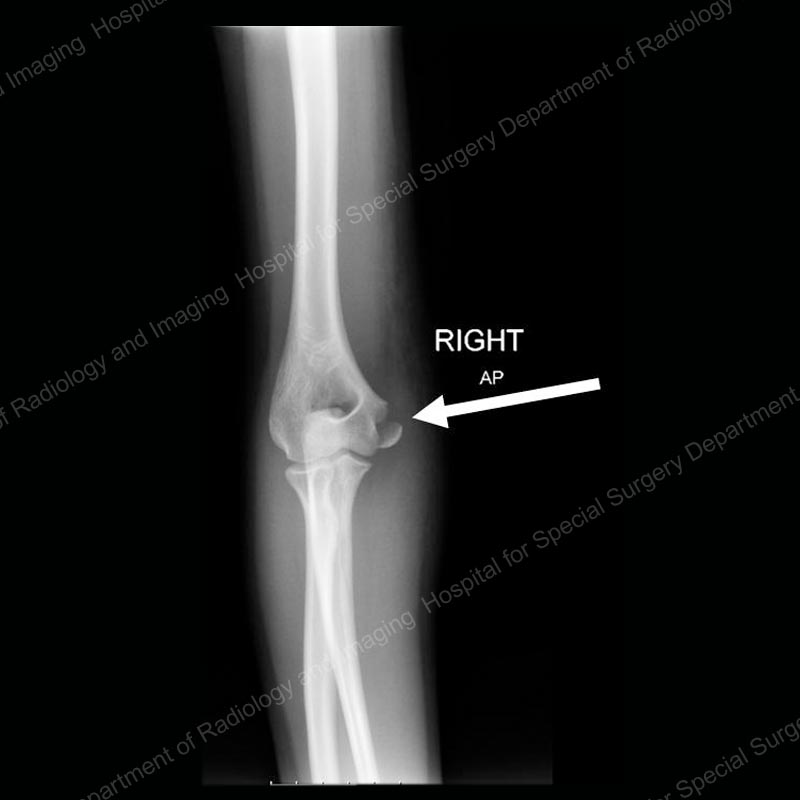 Elbow Fractures In Children An Overview Hss