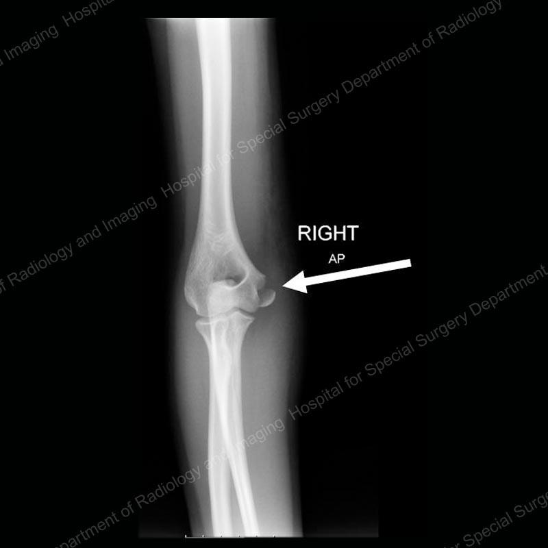 X Ray Broken Elbow Elbow Fractures in Chi...
