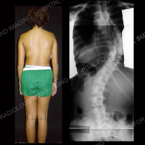 Scoliosis in Adults: What to Know About Symptoms & Treatment