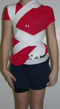 Onset scoliosis patient wearing a rigid, flexible brace, allowing participation in some sports activities.