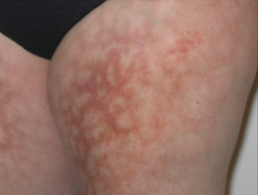 Lupus Vasculitis and Blocked Blood Vessels