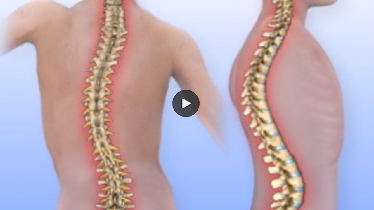 Thumbnail image of scoliosis animation.