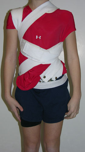 Photo of a patient wearing a rigid, flexible brace, front view.