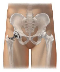 Illustration of an implant in a hip
